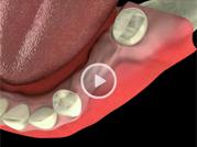 sinusitis maxillaris sinuslift